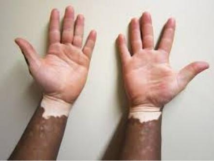 Vitiligo Solutions Clinic